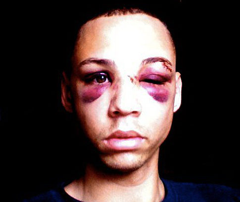 Update: 'Gay' Man Arrested in Connection with Brutal Beating; Not Charged with Hate Crime