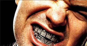 gay blog, bling teeth, smile, jewelry, mouth