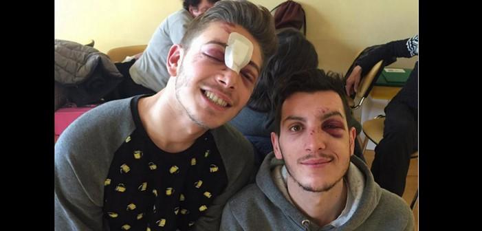 Após um Ataque Homofóbico Brutal em Milão, Uma das Vítimas Se Pronuncia