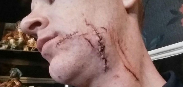 Man Slashed and Disfigured By Two Men After Being Called A 'Fag'