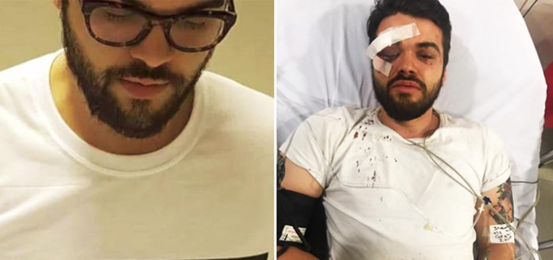 "Atleta argentino é agredido por ""comportamento gay"" e pode ficar cego"