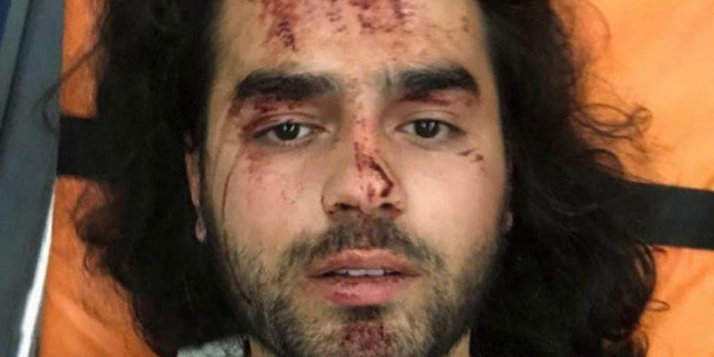 Ativistas gays atacados por 30 pessoas e ficam gravemente feridos