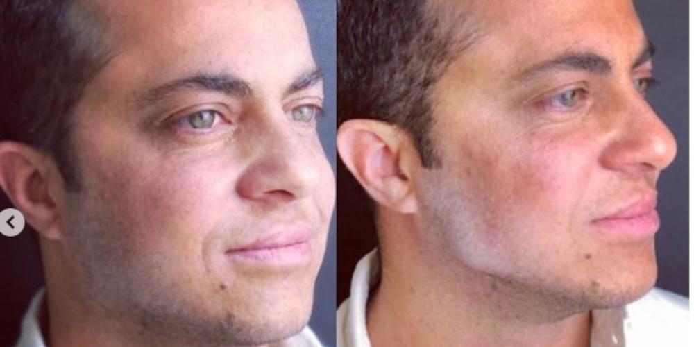 Thammy Miranda realiza procedimento cirúrgico para deixar rosto mais masculino